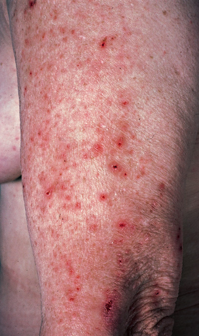 Dermatitis Herpetiformis - NORD (National Organization for ...