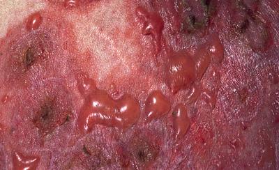 Dermatit herpetiformis